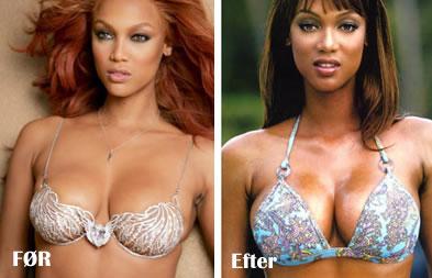 brystoperation kirurgi